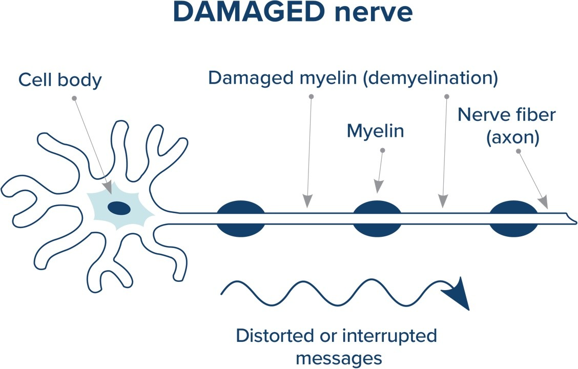 damaged nerve